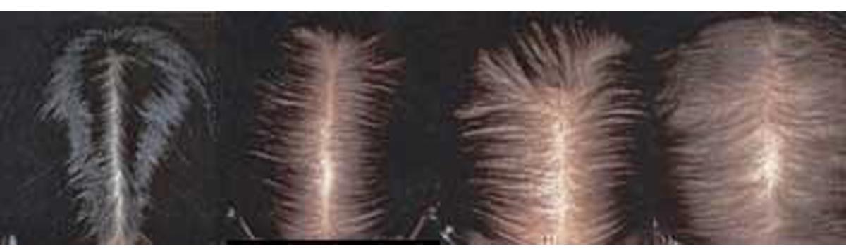 состояние волос показатель здоровья
